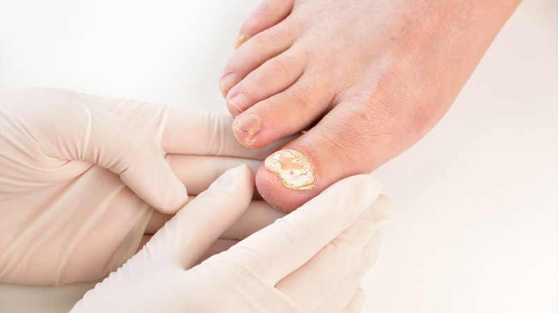 b2ap3 thumbnail 66207869 S laser surgery toenail fungus doctor foot toe 20190522 191953 1