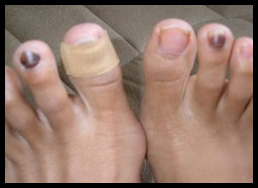 Why Do Runners Get Black Toenails
