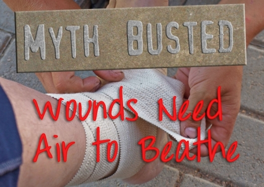 Medical Mythbusting 102: Wound Air