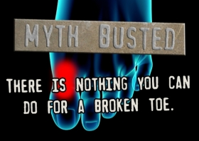 Medical Mythbusting 101: The Broken Toe