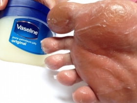 Medical Myth Buster - Vaseline is Good for The Feet