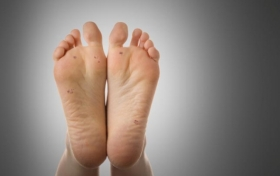 Why Are Warts So Tough To Kill?