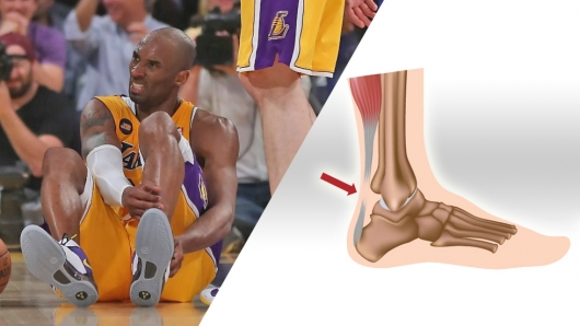 Sports Injuries The Achilles Tendon