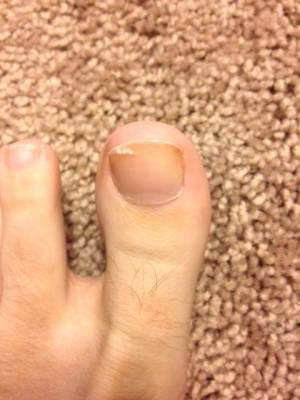 Healed Big Toe