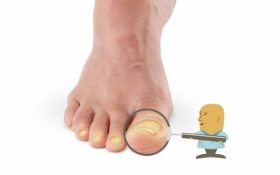 Struggling with Plantar Warts or Nail Fungus?