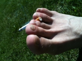 Smoking and Plantar Callus Formation