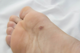 3 Skin Cancers That Can Affect Your Feet
