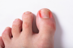 3 Causes of Painful Ingrown Toenails