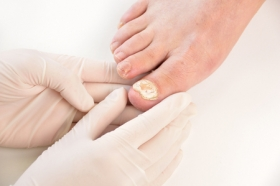 4 Ways to Avoid a Fungal Toenail Infection