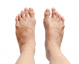 Nailing Hammertoe Issues