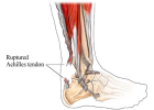 achilles-tendon-1