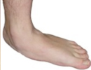 flexible-flatfoot-4