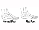 flexible-flatfoot-5