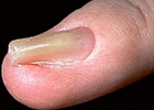 ingrowntoenail3